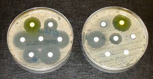Traditional testing of antibiotics in vitro. Image credit: Graham Beards